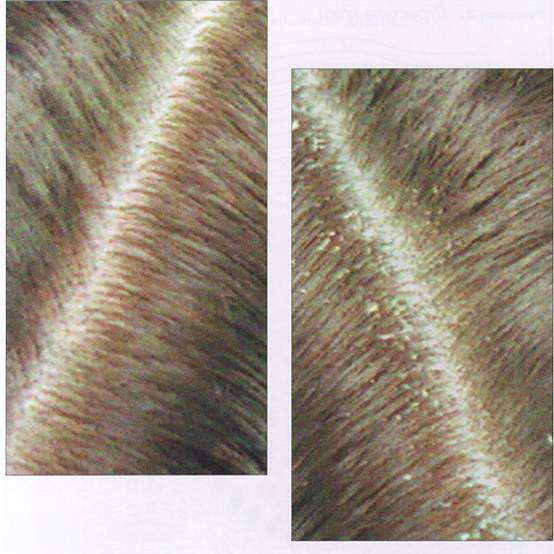 Senzatia de mancarime la nivelul scalpului - cauze si remedii