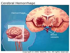 Cerebral Hemorrhage
