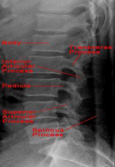 Tratamentul osteoartritei articula?iilor genunchiului cu 1 grad